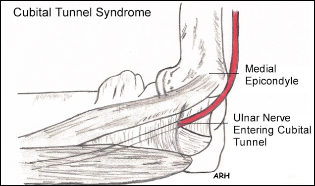 Repetitive Strain Injuries (RSI) Carpal Tunnel Syndrome Symptoms ...